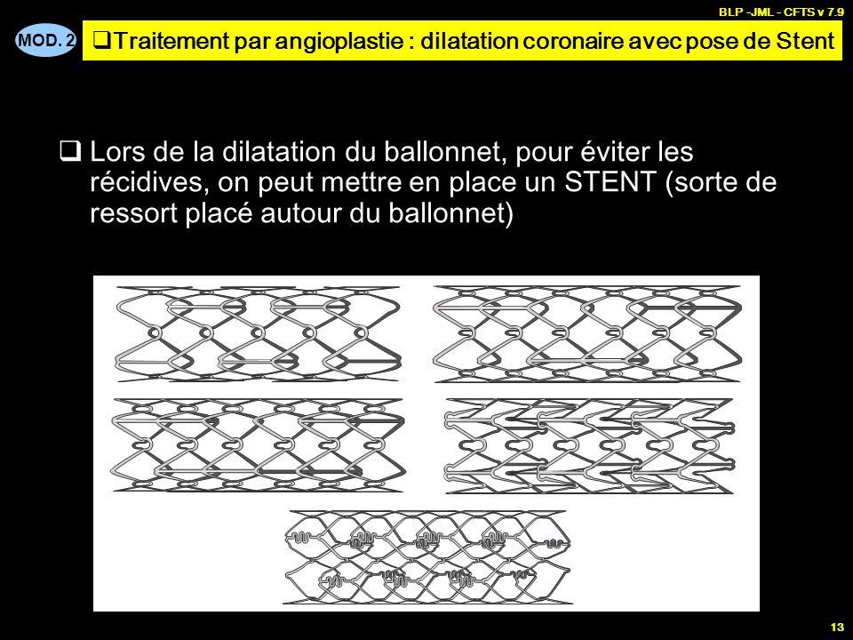 MOD. 2 BLP -JML - CFTS v 7.9 13 Lors de la dilatation du ballonnet, pour éviter les récidives, on peut mettre en place un STENT (sorte de ressort plac