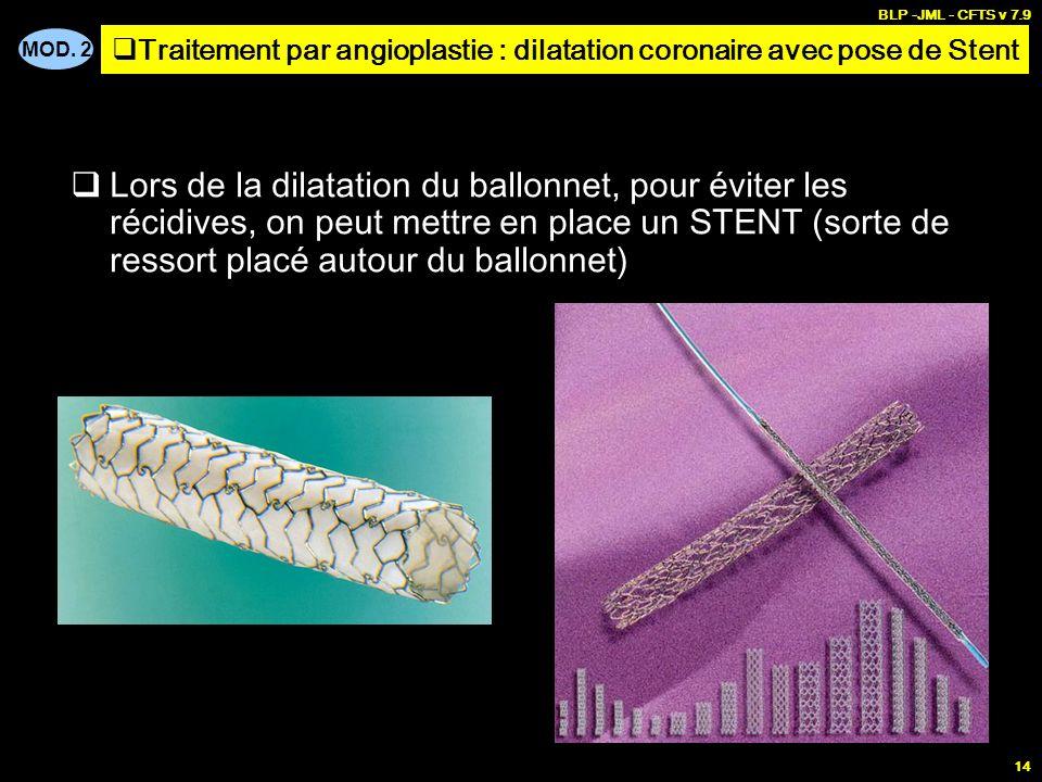MOD. 2 BLP -JML - CFTS v 7.9 14 Lors de la dilatation du ballonnet, pour éviter les récidives, on peut mettre en place un STENT (sorte de ressort plac