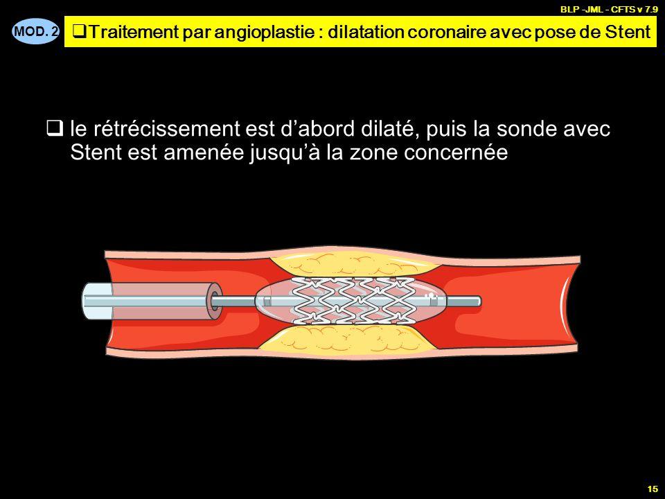 MOD. 2 BLP -JML - CFTS v 7.9 15 le rétrécissement est dabord dilaté, puis la sonde avec Stent est amenée jusquà la zone concernée Traitement par angio