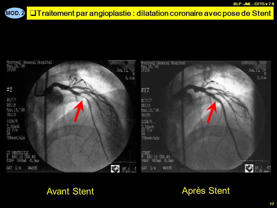 MOD. 2 BLP -JML - CFTS v 7.9 17 Avant Stent Après Stent Traitement par angioplastie : dilatation coronaire avec pose de Stent