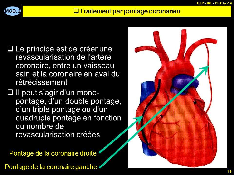 MOD. 2 BLP -JML - CFTS v 7.9 18 Le principe est de créer une revascularisation de lartère coronaire, entre un vaisseau sain et la coronaire en aval du