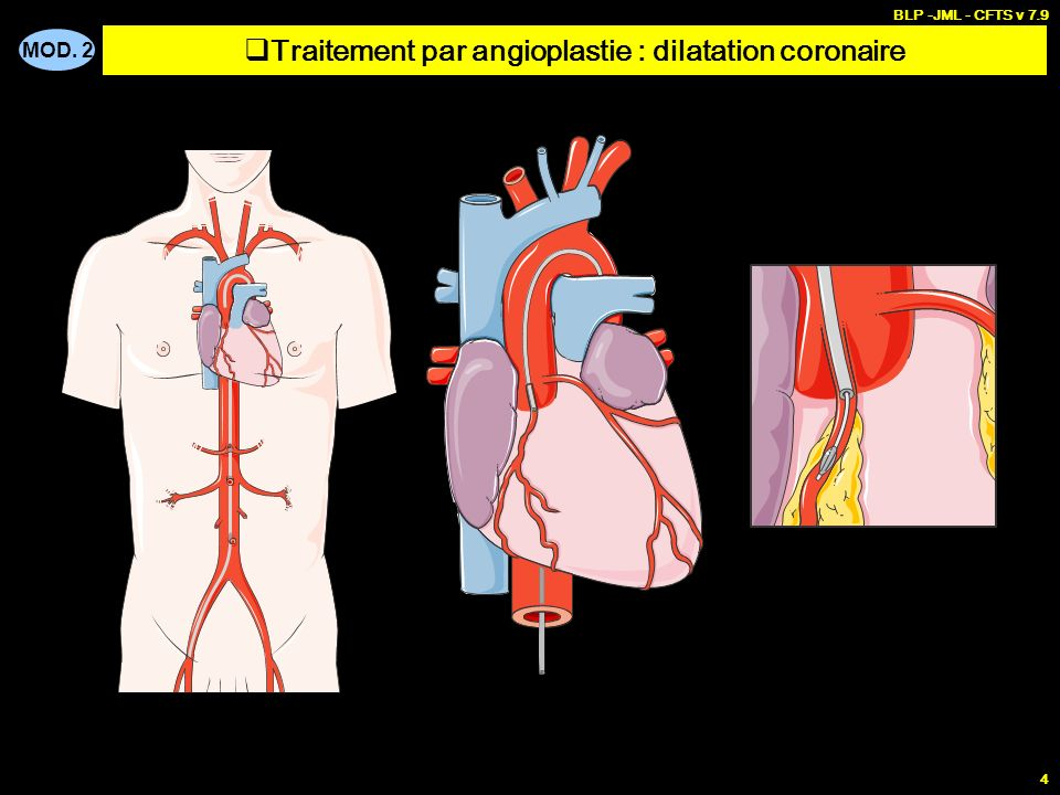 MOD. 2 BLP -JML - CFTS v 7.9 4 Traitement par angioplastie : dilatation coronaire
