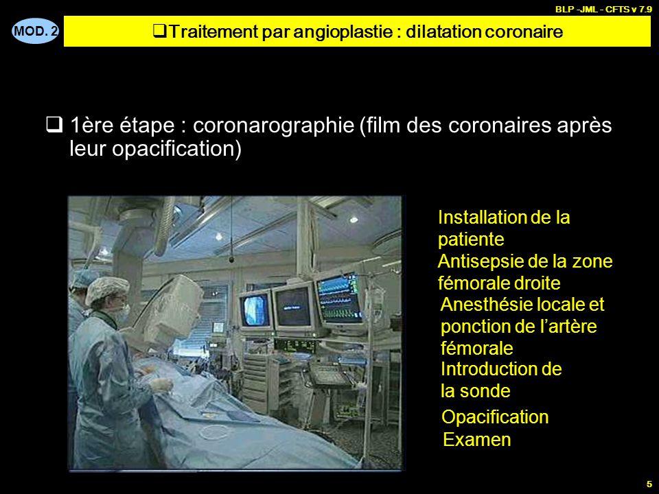 MOD. 2 BLP -JML - CFTS v 7.9 5 1ère étape : coronarographie (film des coronaires après leur opacification) Installation de la patiente Antisepsie de l