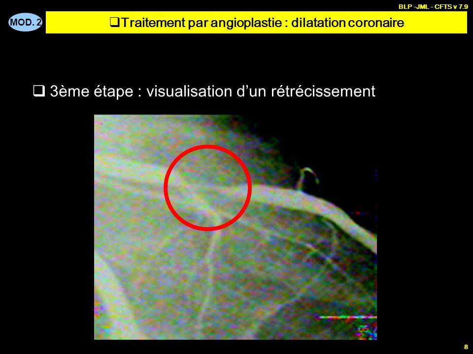MOD. 2 BLP -JML - CFTS v 7.9 8 3ème étape : visualisation dun rétrécissement Traitement par angioplastie : dilatation coronaire
