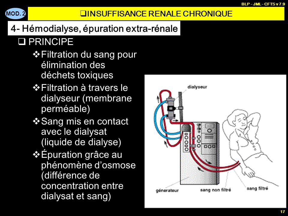 MOD. 2 BLP - JML - CFTS v 7.9 17 PRINCIPE Filtration du sang pour élimination des déchets toxiques Filtration à travers le dialyseur (membrane perméab