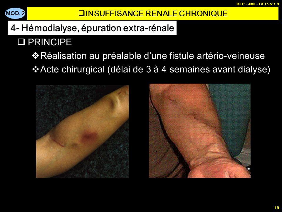 MOD. 2 BLP - JML - CFTS v 7.9 19 PRINCIPE Réalisation au préalable dune fistule artério-veineuse Acte chirurgical (délai de 3 à 4 semaines avant dialy
