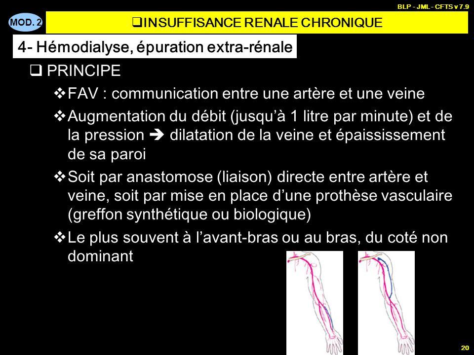 MOD. 2 BLP - JML - CFTS v 7.9 20 PRINCIPE FAV : communication entre une artère et une veine Augmentation du débit (jusquà 1 litre par minute) et de la