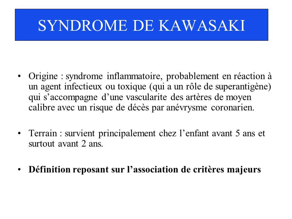 SYNDROME DE KAWASAKI Origine : syndrome inflammatoire, probablement en réaction à un agent infectieux ou toxique (qui a un rôle de superantigène) qui