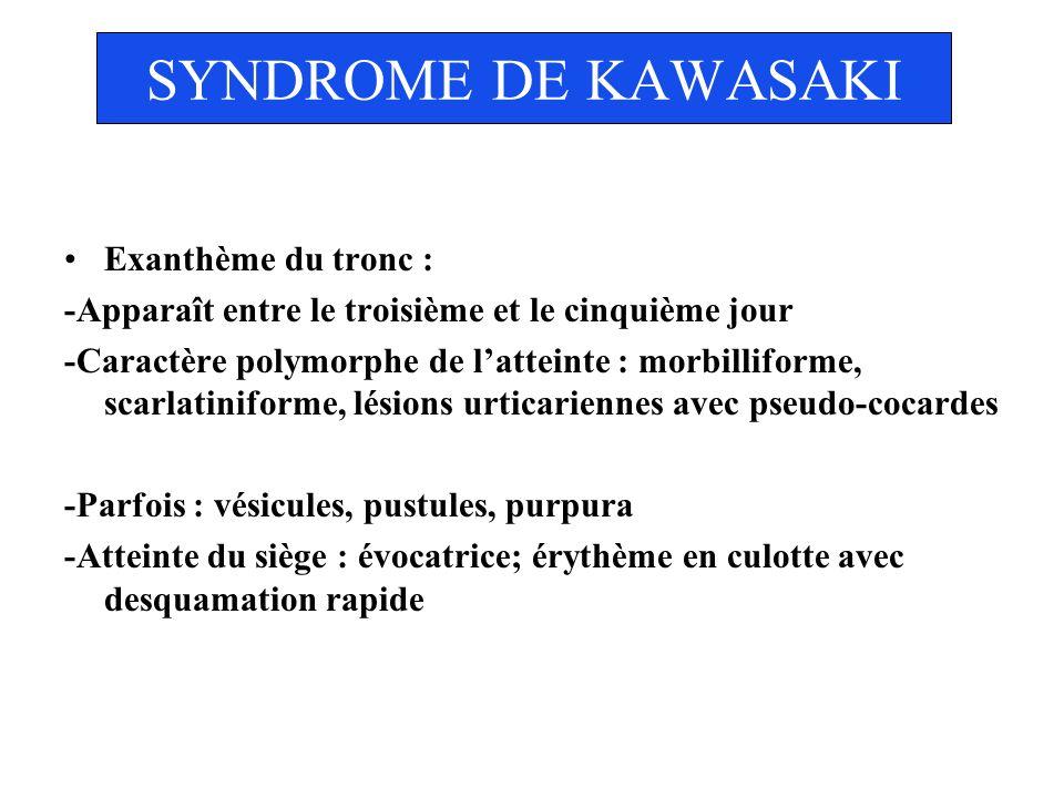 SYNDROME DE KAWASAKI Exanthème du tronc : -Apparaît entre le troisième et le cinquième jour -Caractère polymorphe de latteinte : morbilliforme, scarla