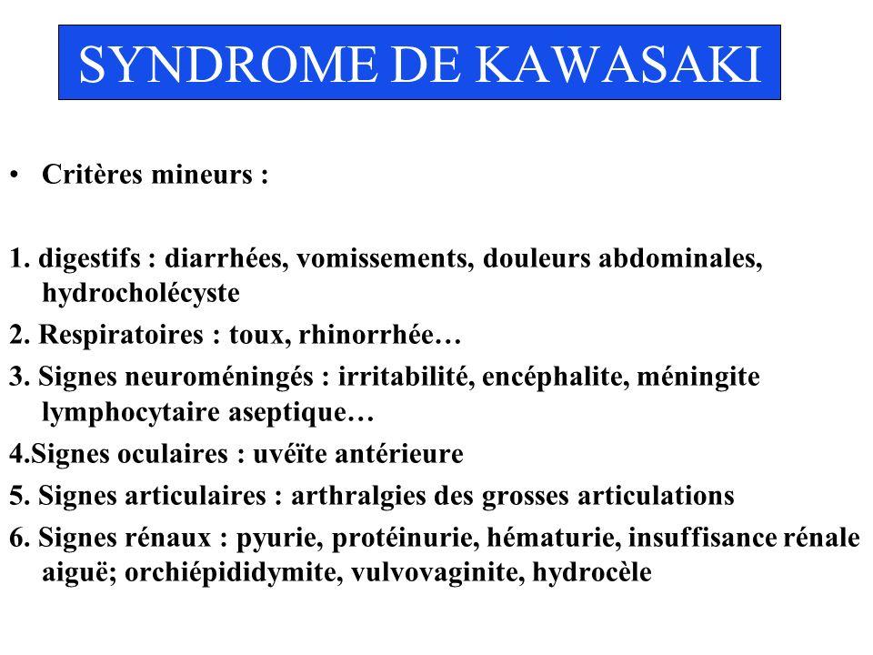 SYNDROME DE KAWASAKI Critères mineurs : 1. digestifs : diarrhées, vomissements, douleurs abdominales, hydrocholécyste 2. Respiratoires : toux, rhinorr