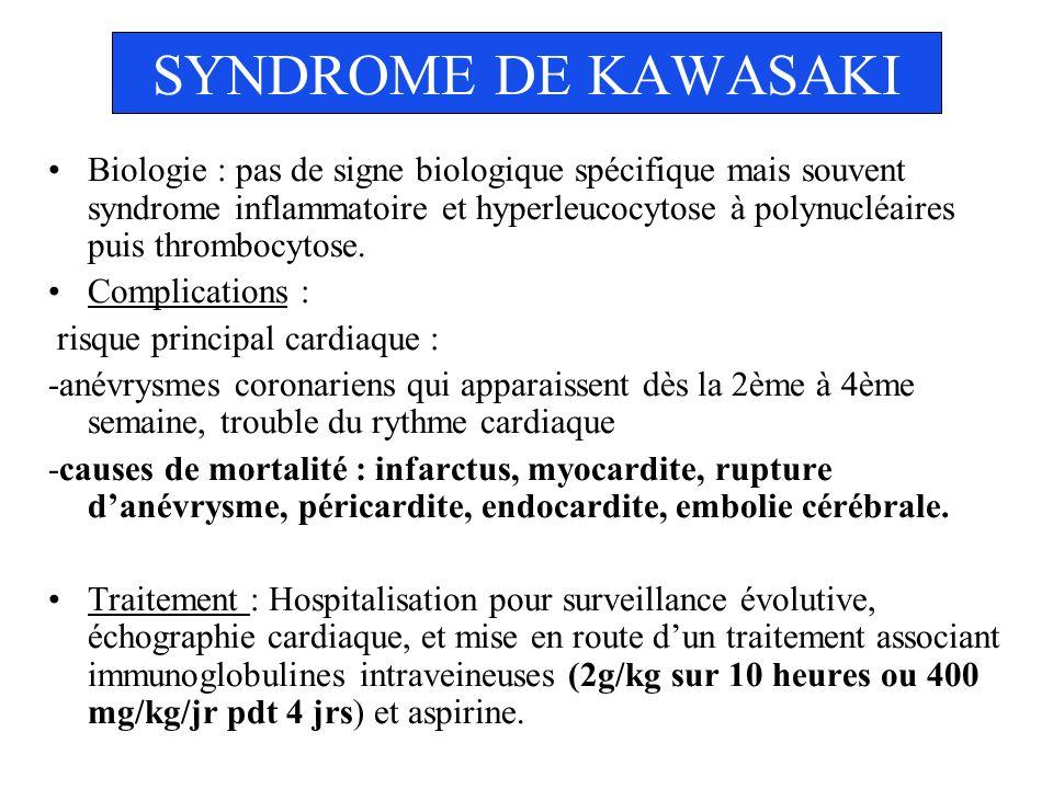 SYNDROME DE KAWASAKI Biologie : pas de signe biologique spécifique mais souvent syndrome inflammatoire et hyperleucocytose à polynucléaires puis throm