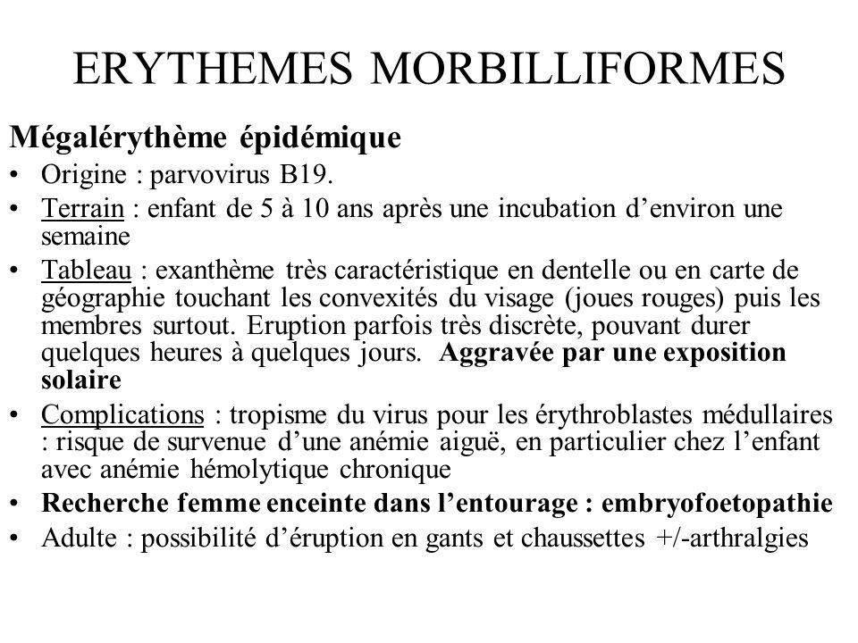 ERYTHEMES MORBILLIFORMES Mégalérythème épidémique Origine : parvovirus B19. Terrain : enfant de 5 à 10 ans après une incubation denviron une semaine T