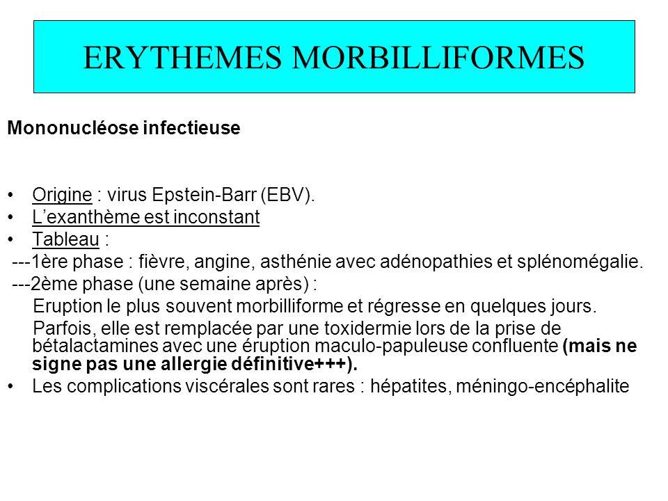 ERYTHEMES MORBILLIFORMES Mononucléose infectieuse Origine : virus Epstein-Barr (EBV). Lexanthème est inconstant Tableau : ---1ère phase : fièvre, angi