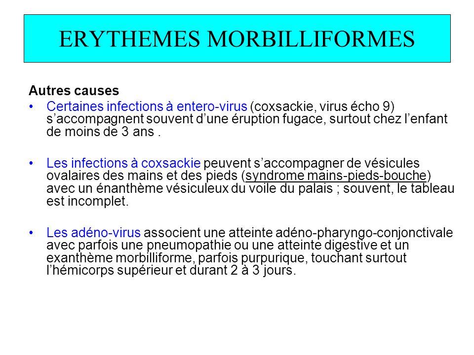 ERYTHEMES MORBILLIFORMES Autres causes Certaines infections à entero-virus (coxsackie, virus écho 9) saccompagnent souvent dune éruption fugace, surto
