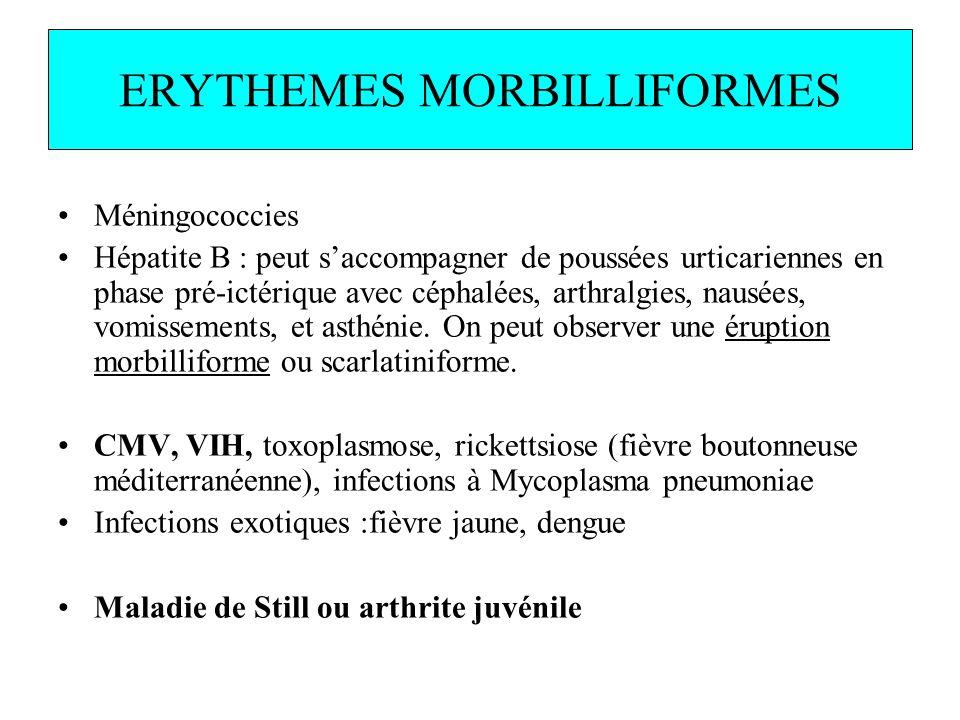 ERYTHEMES MORBILLIFORMES Méningococcies Hépatite B : peut saccompagner de poussées urticariennes en phase pré-ictérique avec céphalées, arthralgies, n