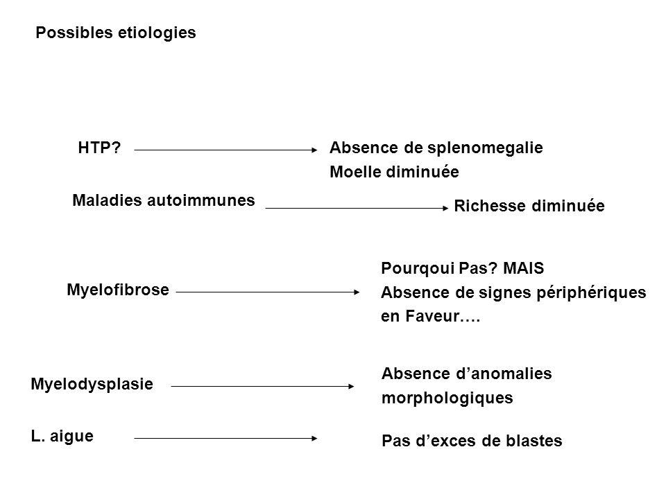 Possibles etiologies HTP?Absence de splenomegalie Moelle diminuée Maladies autoimmunes Richesse diminuée Myelofibrose Pourqoui Pas? MAIS Absence de si