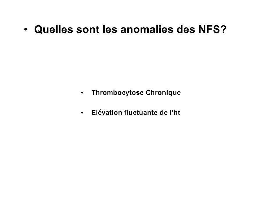 Quelles sont les anomalies des NFS Thrombocytose Chronique Elévation fluctuante de lht