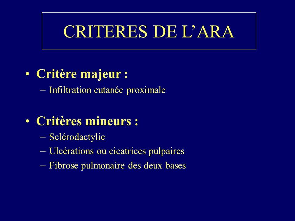 CRITERES DE LARA Critère majeur : –Infiltration cutanée proximale Critères mineurs : –Sclérodactylie –Ulcérations ou cicatrices pulpaires –Fibrose pul