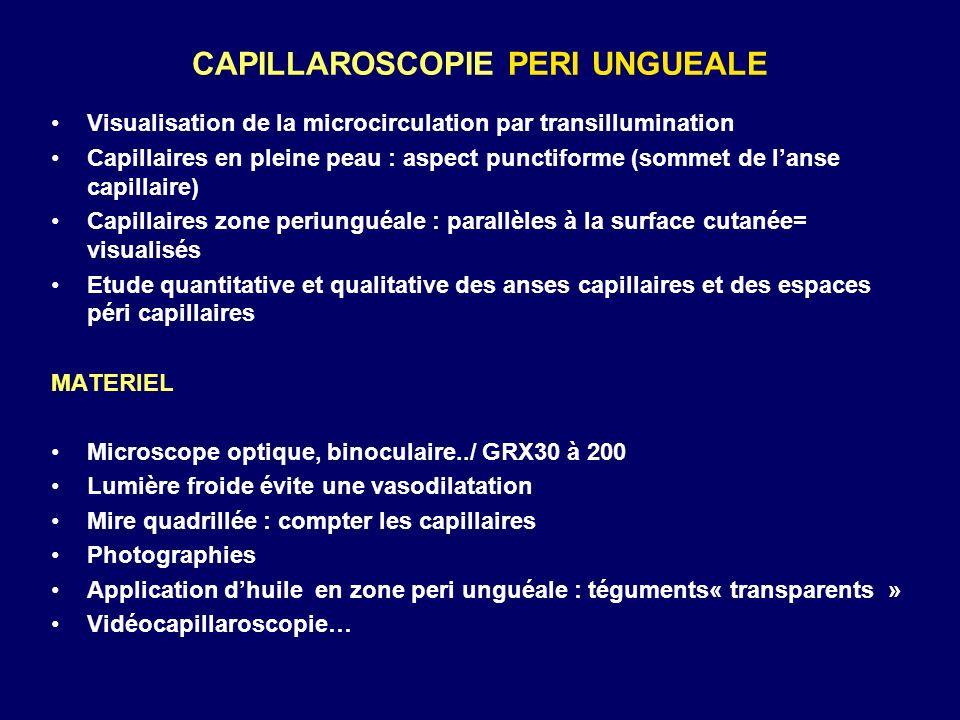 CAPILLAROSCOPIE PERI UNGUEALE Visualisation de la microcirculation par transillumination Capillaires en pleine peau : aspect punctiforme (sommet de la
