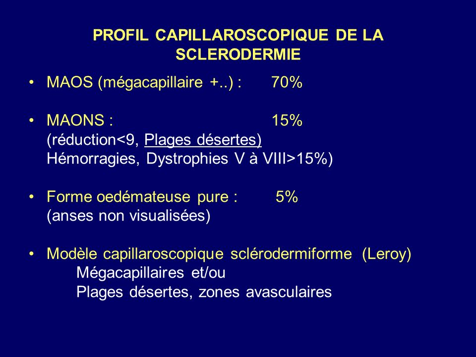 PROFIL CAPILLAROSCOPIQUE DE LA SCLERODERMIE MAOS (mégacapillaire +..) : 70% MAONS : 15% (réduction<9, Plages désertes) Hémorragies, Dystrophies V à VI