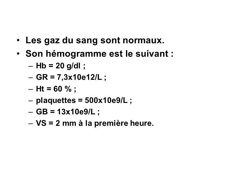 Les gaz du sang sont normaux. Son hémogramme est le suivant : –Hb = 20 g/dl ; –GR = 7,3x10e12/L ; –Ht = 60 % ; –plaquettes = 500x10e9/L ; –GB = 13x10e