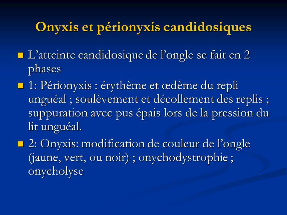 Onyxis et périonyxis candidosiques Latteinte candidosique de longle se fait en 2 phases Latteinte candidosique de longle se fait en 2 phases 1: Périon