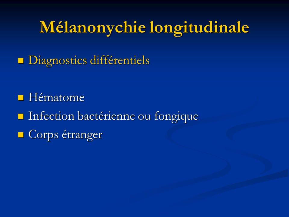 Mélanonychie longitudinale Diagnostics différentiels Diagnostics différentiels Hématome Hématome Infection bactérienne ou fongique Infection bactérien