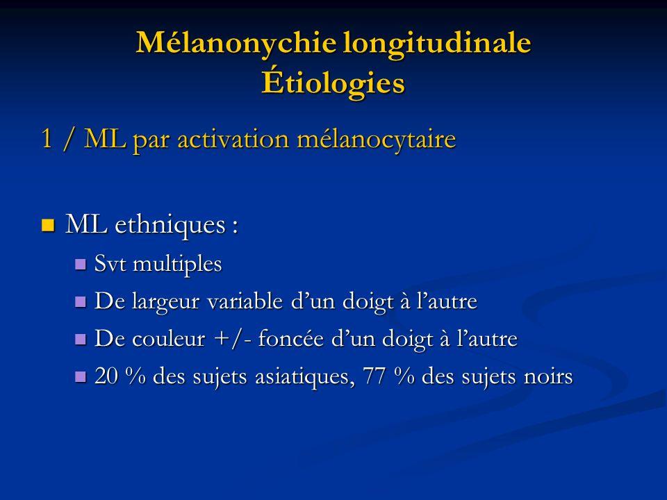 Mélanonychie longitudinale Étiologies 1 / ML par activation mélanocytaire ML ethniques : ML ethniques : Svt multiples Svt multiples De largeur variabl