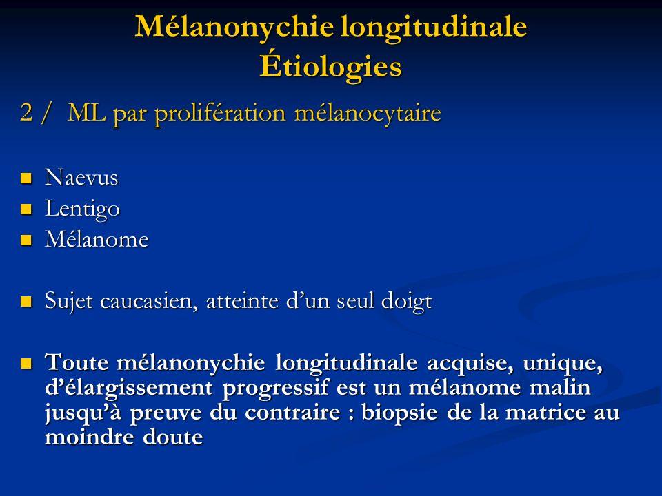 Mélanonychie longitudinale Étiologies 2 / ML par prolifération mélanocytaire Naevus Naevus Lentigo Lentigo Mélanome Mélanome Sujet caucasien, atteinte