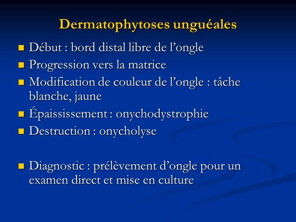 Dermatophytoses unguéales Début : bord distal libre de longle Début : bord distal libre de longle Progression vers la matrice Progression vers la matr