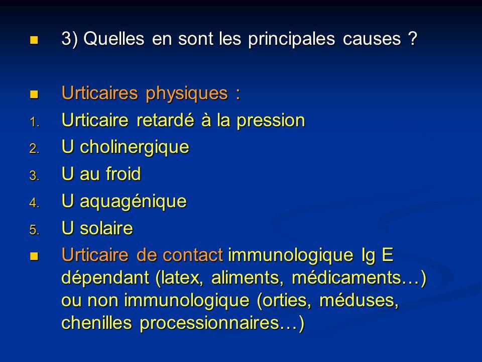 3) Quelles en sont les principales causes ? 3) Quelles en sont les principales causes ? Urticaires physiques : Urticaires physiques : 1. Urticaire ret