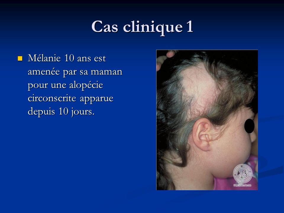 Cas clinique 1 Mélanie 10 ans est amenée par sa maman pour une alopécie circonscrite apparue depuis 10 jours. Mélanie 10 ans est amenée par sa maman p