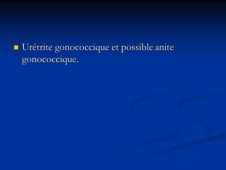 Urétrite gonococcique et possible anite gonococcique. Urétrite gonococcique et possible anite gonococcique.