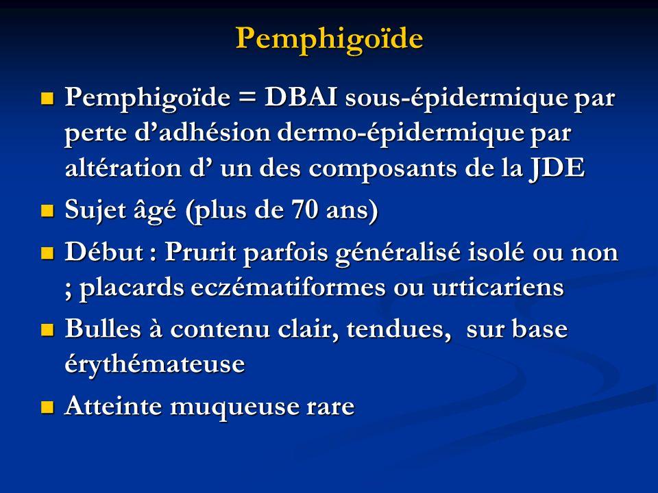 Pemphigoïde NFS: hyperéosinophilie fréquente NFS: hyperéosinophilie fréquente Histologie standard: bulle sous épidermique contenant des éosinophiles Histologie standard: bulle sous épidermique contenant des éosinophiles IFD: dépôts danticorps linéaires IgG et/ou C3 le long de la membrane basale de lépiderme IFD: dépôts danticorps linéaires IgG et/ou C3 le long de la membrane basale de lépiderme IFI: anticorps anti-membrane basale dans 80% des cas IFI: anticorps anti-membrane basale dans 80% des cas Techique ELISA ou Immunotransfert: détection des antigènes cibles: AgPB1 (230kD) et/ou AgPB2(180kD) Techique ELISA ou Immunotransfert: détection des antigènes cibles: AgPB1 (230kD) et/ou AgPB2(180kD) Traitement : Corticothérapie locale forte (Niveau 4) Traitement : Corticothérapie locale forte (Niveau 4)