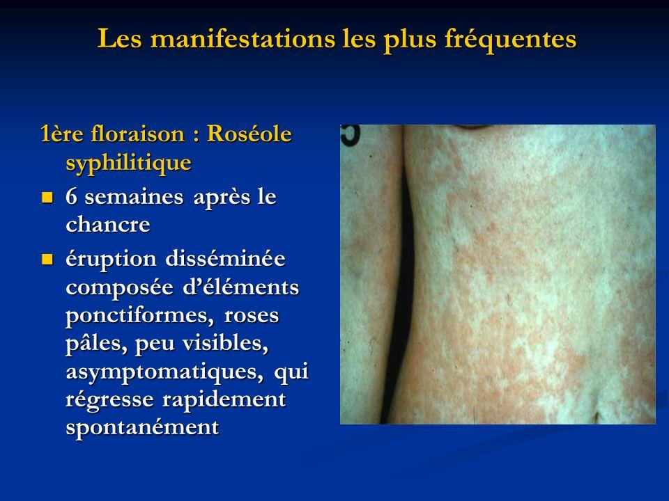 Les manifestations les plus fréquentes 1ère floraison : Roséole syphilitique 6 semaines après le chancre 6 semaines après le chancre éruption dissémin