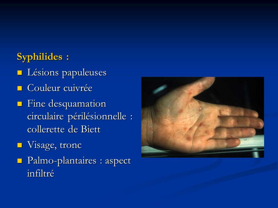 Syphilides : Lésions papuleuses Lésions papuleuses Couleur cuivrée Couleur cuivrée Fine desquamation circulaire périlésionnelle : collerette de Biett