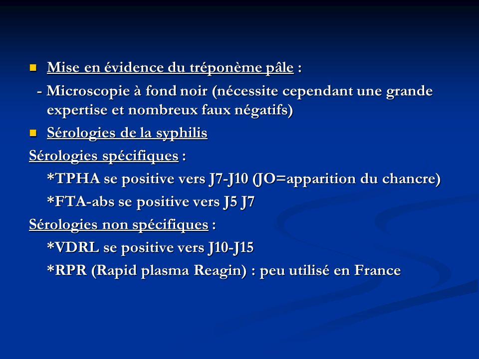 Traitement En cas de syphilis précoce (<1an) : - stade primaire, stade secondaire - une seule injection IM dExtencilline 2,4 MU en cas dallergie à la pénicilline : doxycycline : 200 mg/j 15 jours en cas dallergie à la pénicilline : doxycycline : 200 mg/j 15 jours