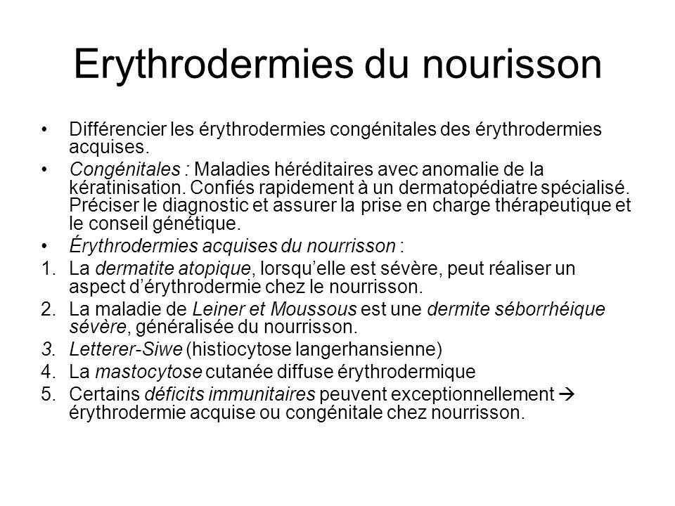 Erythrodermies du nourisson Différencier les érythrodermies congénitales des érythrodermies acquises.