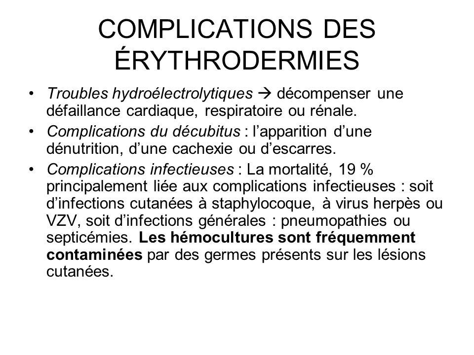 COMPLICATIONS DES ÉRYTHRODERMIES Troubles hydroélectrolytiques décompenser une défaillance cardiaque, respiratoire ou rénale.