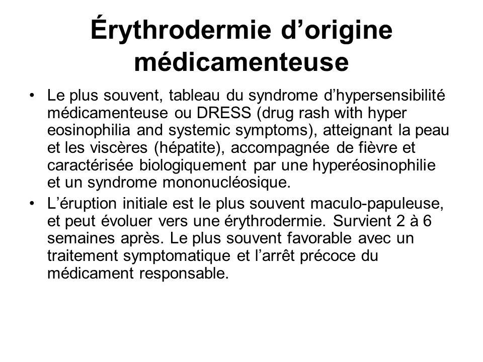 Le plus souvent, tableau du syndrome dhypersensibilité médicamenteuse ou DRESS (drug rash with hyper eosinophilia and systemic symptoms), atteignant la peau et les viscères (hépatite), accompagnée de fièvre et caractérisée biologiquement par une hyperéosinophilie et un syndrome mononucléosique.