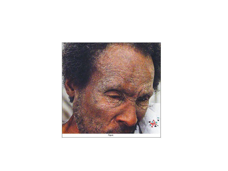 Erythrodermie dorigine infectieuse En particulier la gale croûteuse dite «norvégienne » survient sur un terrain débilité Retard mental, personne âgée, HIV…