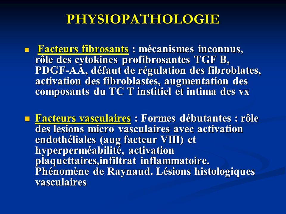 PHYSIOPATHOLOGIE Facteurs fibrosants : mécanismes inconnus, rôle des cytokines profibrosantes TGF B, PDGF-AA, défaut de régulation des fibroblates, ac