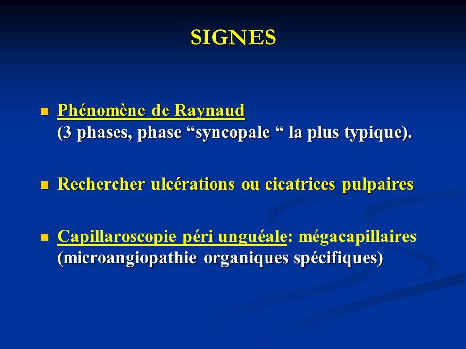 SIGNES atteinte cutanée (valeur dg++) : atteinte cutanée (valeur dg++) : sclérodactylie.