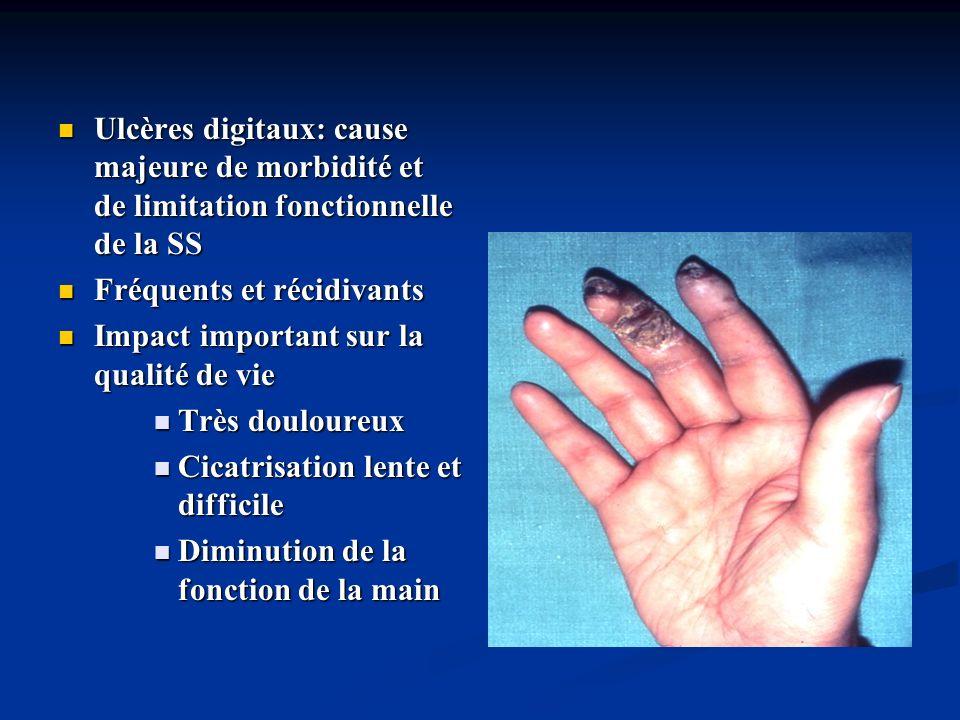 Classification de Le Roy Sclérodermie systémique limitée Sclérodermie systémique limitée 1) Raynaud depuis des années 1) Raynaud depuis des années 2) Atteinte cutanée acrale : limitée aux extrémités (mains, pieds, avant-bras) et à la face, ou absente 2) Atteinte cutanée acrale : limitée aux extrémités (mains, pieds, avant-bras) et à la face, ou absente 3) Atteinte tardive de la vascularisation pulmonaire (HTAP), avec ou sans pneumopathie interstitielle, névralgie du trijumeau, calcinoses cutanées, télangiectasies 3) Atteinte tardive de la vascularisation pulmonaire (HTAP), avec ou sans pneumopathie interstitielle, névralgie du trijumeau, calcinoses cutanées, télangiectasies 4) Incidence élevée danticorps anticentromères (70 – 80% des patients) 4) Incidence élevée danticorps anticentromères (70 – 80% des patients) 5) Capillaroscopie : dilatations capillaires le plus souvent sans zones désertes 5) Capillaroscopie : dilatations capillaires le plus souvent sans zones désertes
