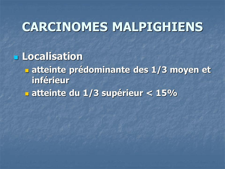 CARCINOMES MALPIGHIENS Localisation Localisation atteinte prédominante des 1/3 moyen et inférieur atteinte prédominante des 1/3 moyen et inférieur att