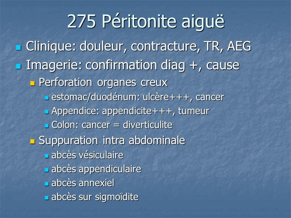 275 Péritonite aiguë Clinique: douleur, contracture, TR, AEG Clinique: douleur, contracture, TR, AEG Imagerie: confirmation diag +, cause Imagerie: co