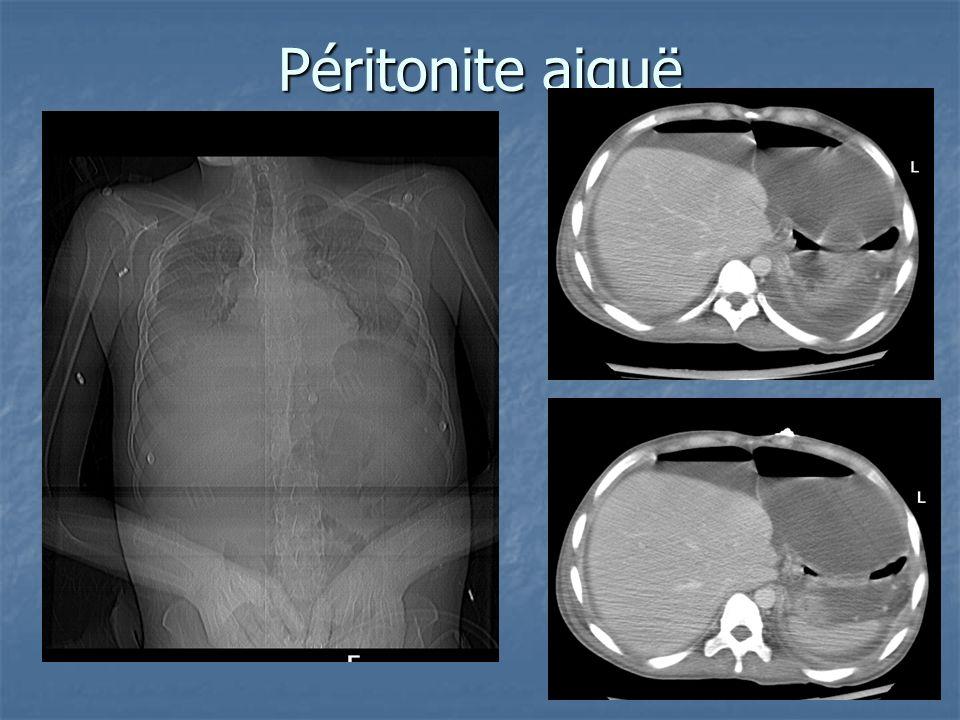 Péritonite aiguë