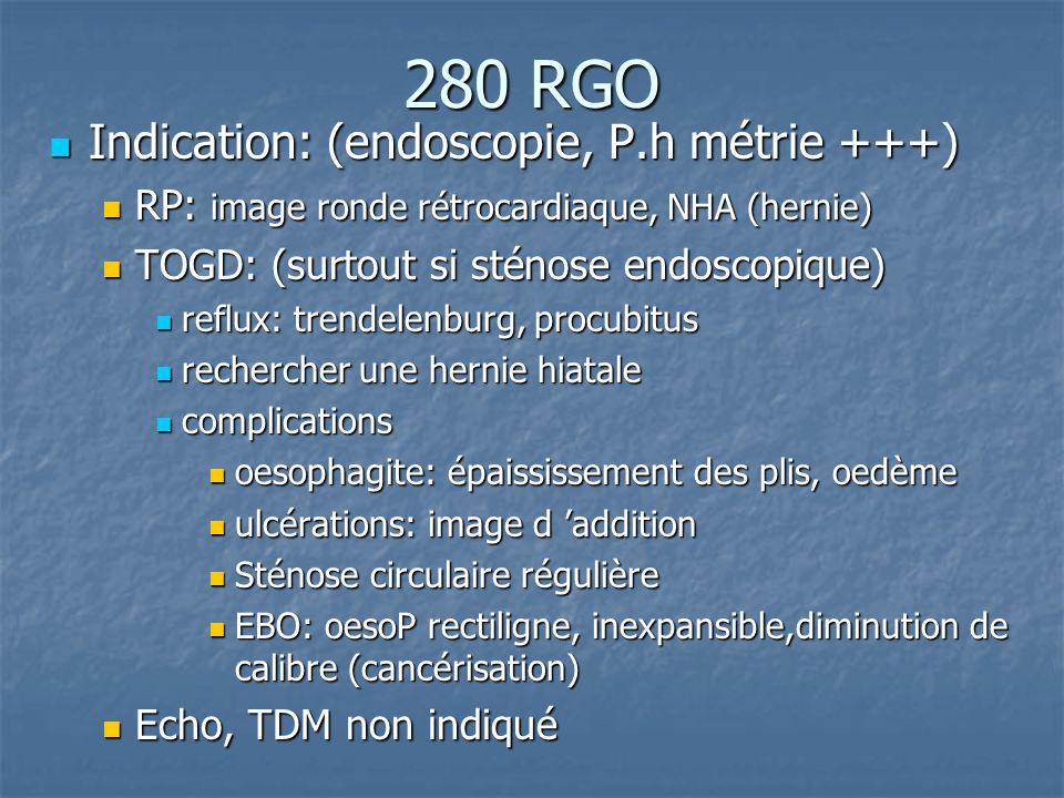 280 RGO Indication: (endoscopie, P.h métrie +++) Indication: (endoscopie, P.h métrie +++) RP: image ronde rétrocardiaque, NHA (hernie) RP: image ronde