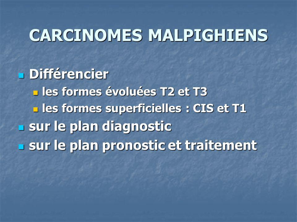 CARCINOMES MALPIGHIENS Différencier Différencier les formes évoluées T2 et T3 les formes évoluées T2 et T3 les formes superficielles : CIS et T1 les f