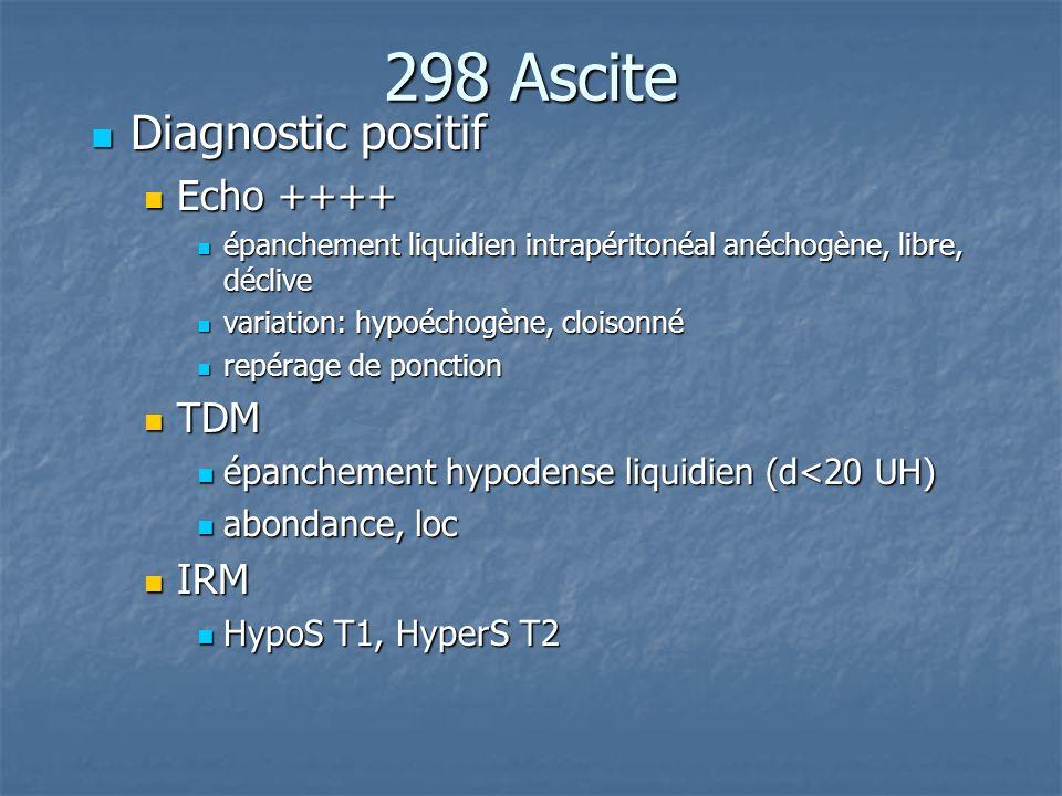 298 Ascite Diagnostic positif Diagnostic positif Echo ++++ Echo ++++ épanchement liquidien intrapéritonéal anéchogène, libre, déclive épanchement liqu